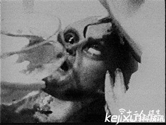 美国解剖外星人的绝密照片被曝光 震惊世界