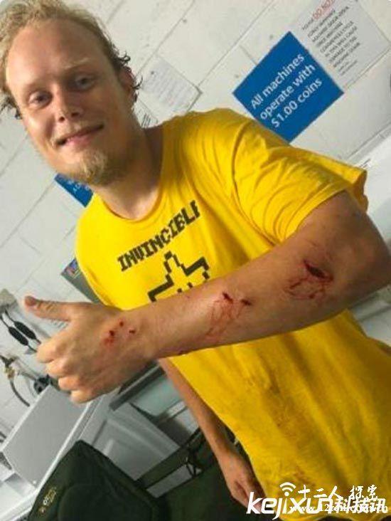 丹麦男子与鳄鱼合影被咬 血肉模糊仍自拍